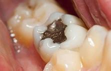 补牙有哪些步骤?需要注意哪些?