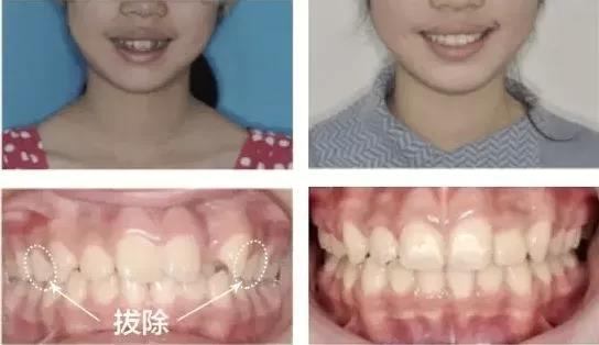 为什么有的人矫正时需要拔牙?不拔会怎样?