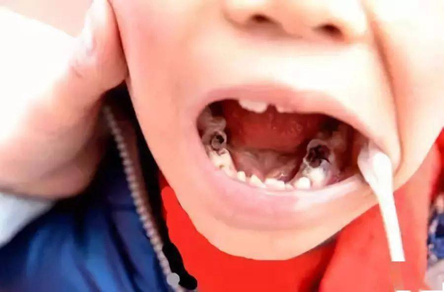 父母注意啦!孩子12岁前必须处理的12种牙颌畸形