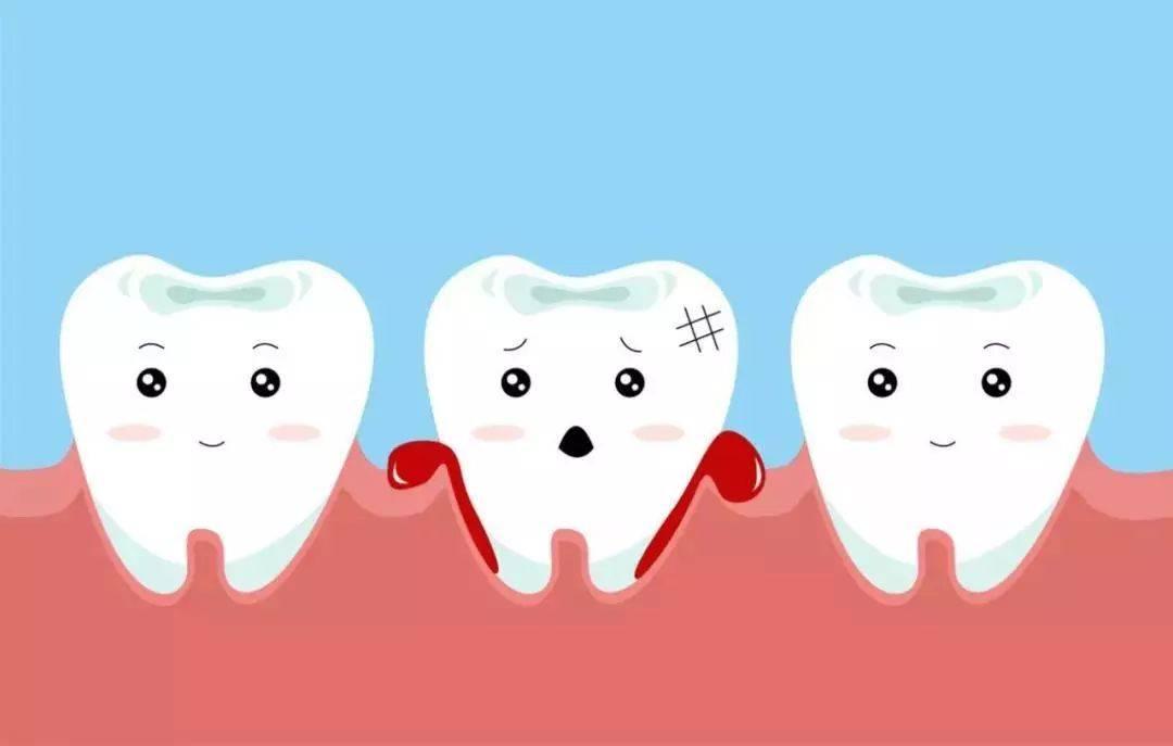 牙周病的7大典型症状和治疗方法
