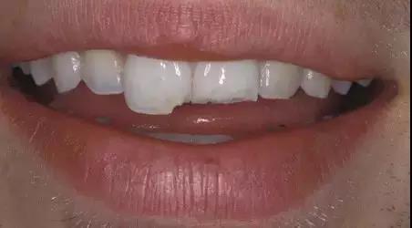 口腔常见十大疾病,有癌症?有一个你都得上心了!!