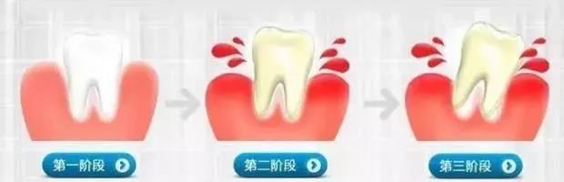 牙病久拖不治,后果很严重!