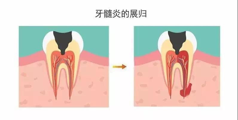 什么是牙髓炎?牙髓炎可以自愈吗?