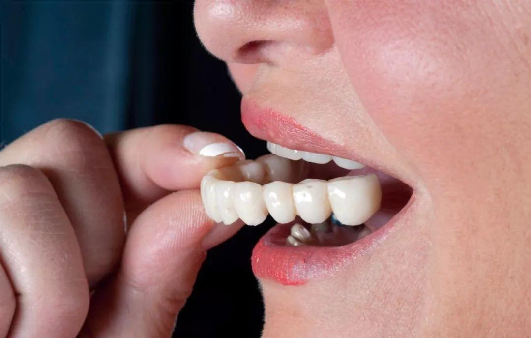 我做过烤瓷牙,还能做牙齿矫正吗?