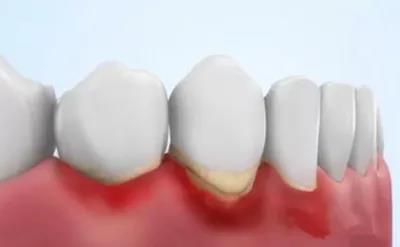 牙龈炎和牙周炎只有一字之差,区别竟然这么大!