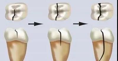 你的牙齿已经裂了!!!牙齿为什么有裂纹?