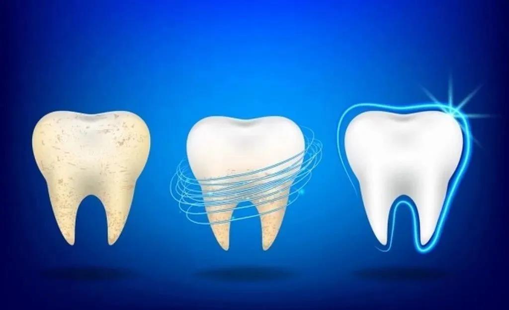 10个关于牙齿美白的常见问题!