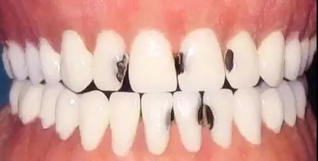 """这几种食物,毁牙!上了牙医""""黑名单""""!"""
