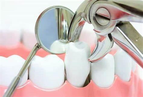拔牙并不是那么简单,口腔医生和你聊聊拔牙那些事?