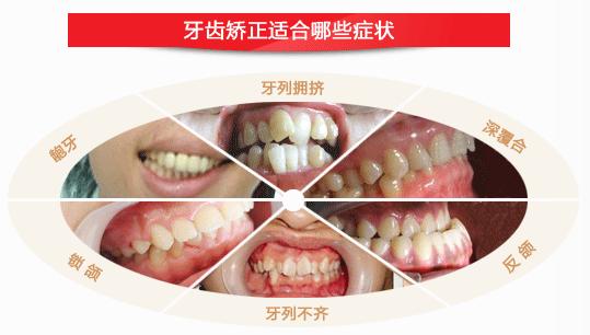 你知道常见的牙齿畸形都有哪些吗?