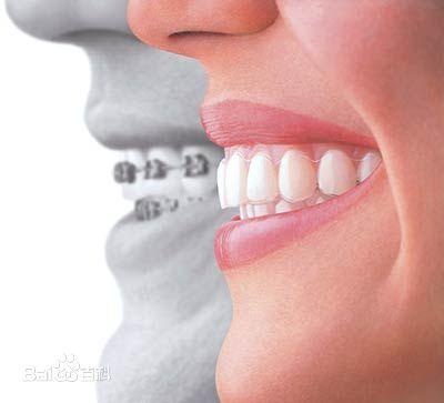 口腔正畸如何护理