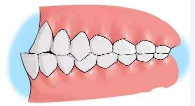 口腔反颌到底是什么?