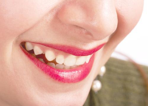什么是氟斑牙?