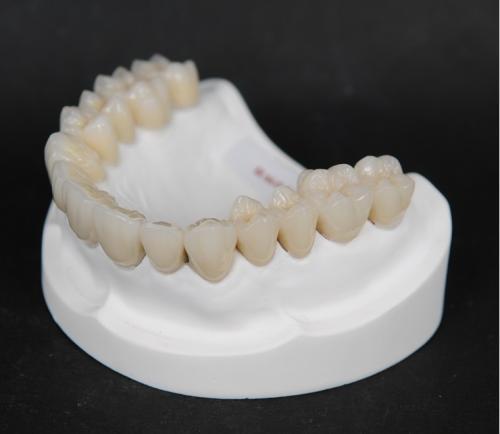 烤瓷牙治疗流程