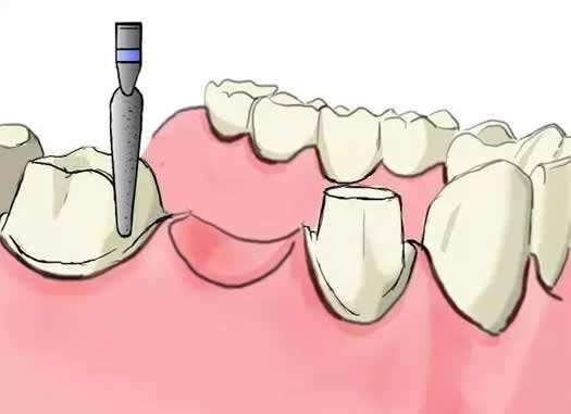 全口假牙的常见问题