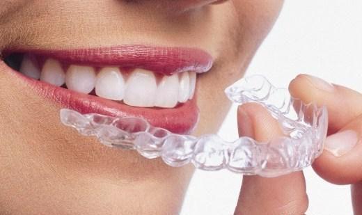 牙齿矫正的价格?