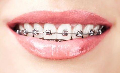 牙齿矫正一般多长时间才能恢复?