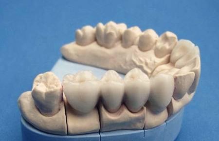 烤瓷牙能用多久,怎么让烤瓷牙寿命更长?