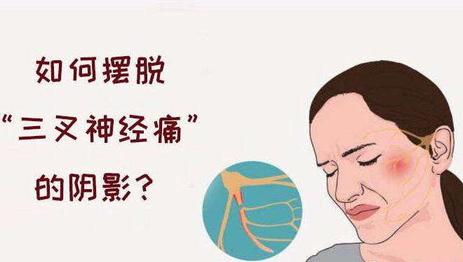 常见三叉神经痛的表现