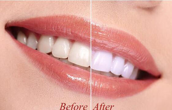 关于牙齿美白你想要知道的!