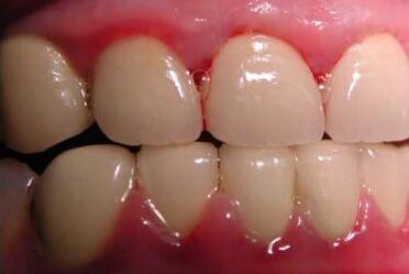 为什么经常牙龈出血,是什么引起的,该如何预防,有什么方法可以有效解决?
