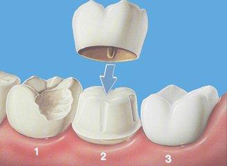 牙齿冠.jpg