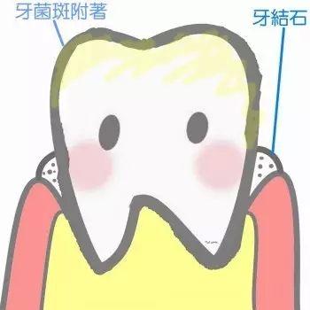 牙结石.jpg