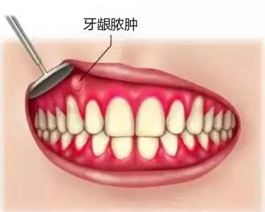 牙龈红肿.jpg