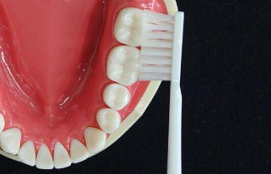 磨牙.jpg