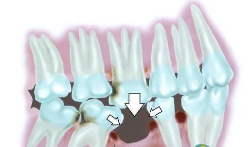 牙缺失.jpg