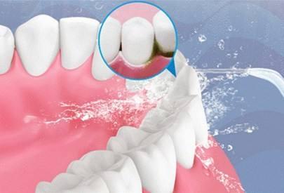 牙龈出血预防.jpg