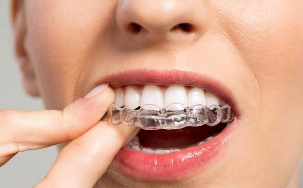 牙齿矫正.jpg